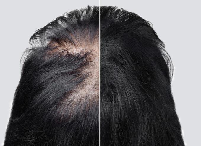 Jak radzić sobie z łysieniem androgenowym?